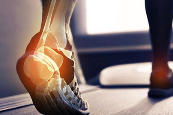 saúde dos pés evitar esporão de calcanhar
