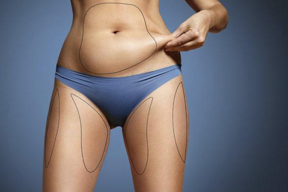 Falso magro e a busca por emagrecer com saúde